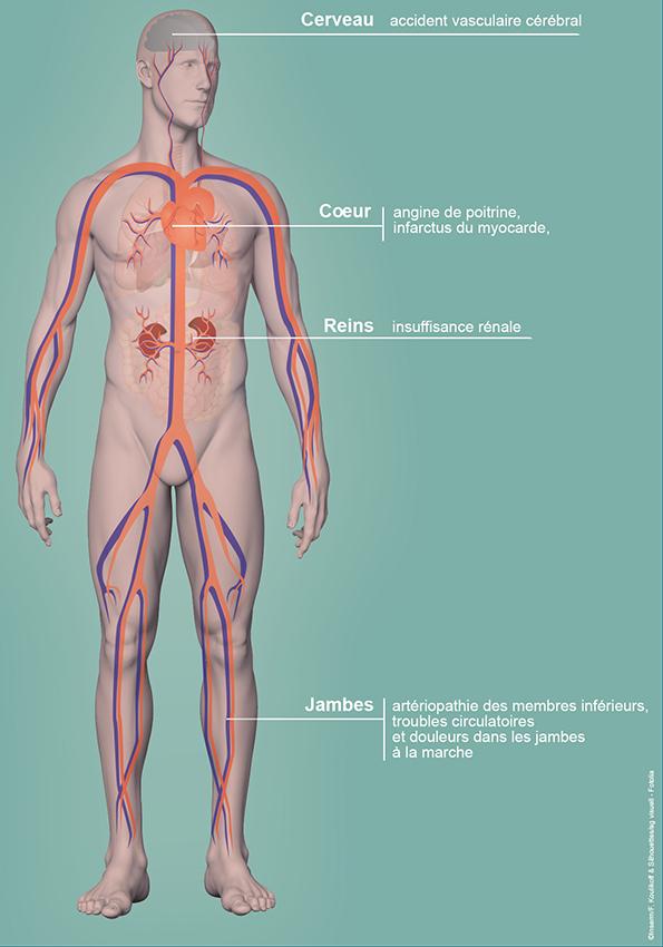 Les principales complications associés à l'hypertension artérielle