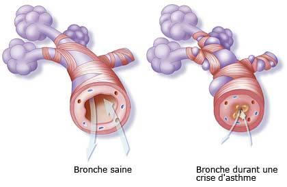 bronches pendant une crise d'asthme