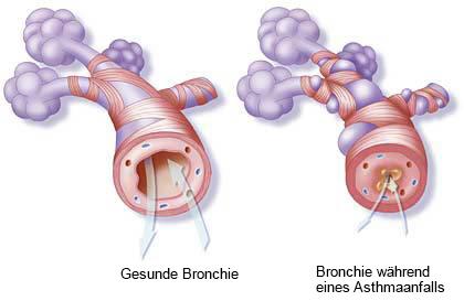 Bronchio währond eines Asthmaanfalls