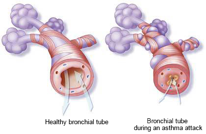 bronchial tube during asthma attack