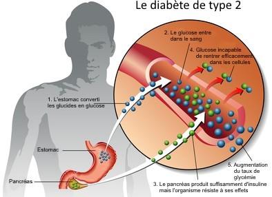 Le Diabète de Type 2 en image