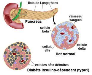 Qu'est ce que le diabète de type 1 ?