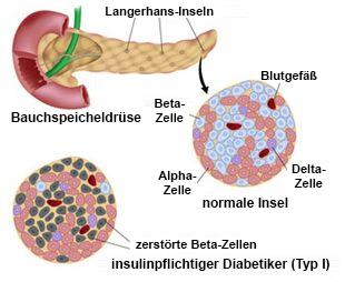 Typ-I-Diabetes